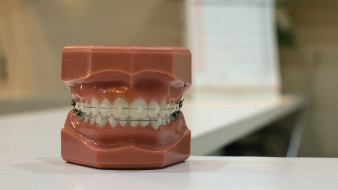 Tips om ontstoken tandvlees te verhelpen
